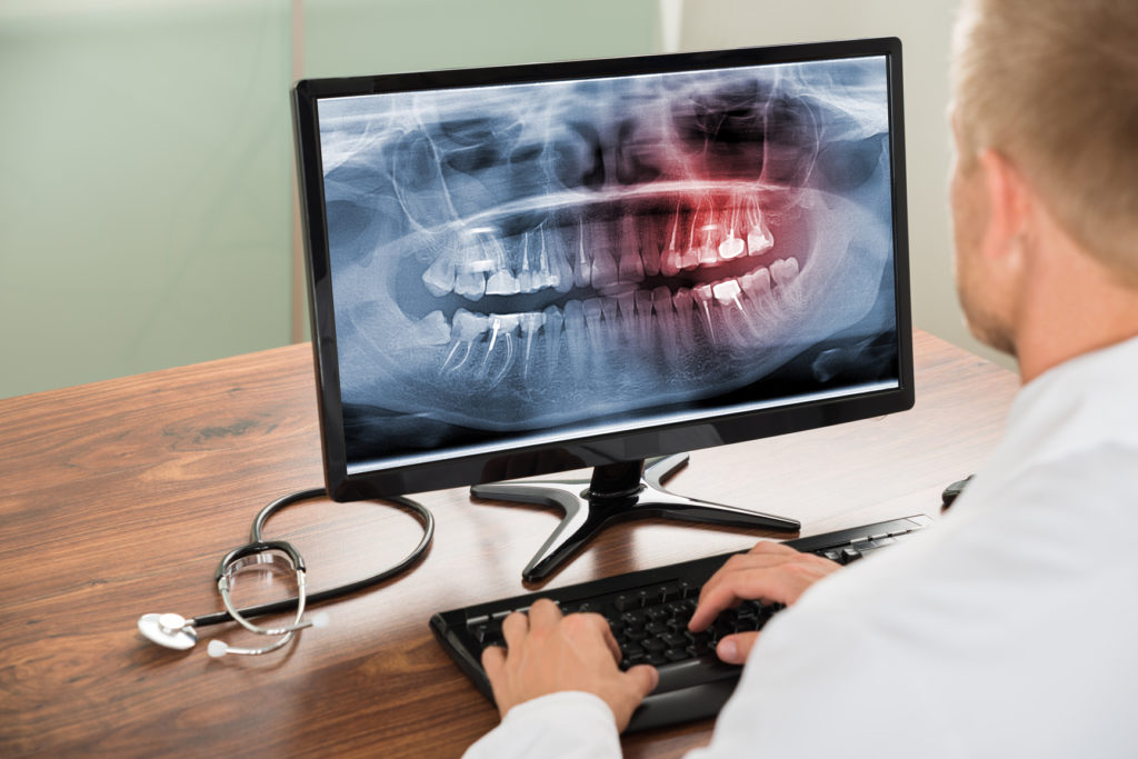 Close-up Of Male Doctor Looking At Teeth X-ray On Computer In Hospital